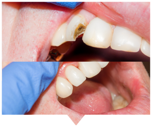 dental bonding before and after blarney dental