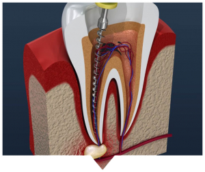 root canal treatment blarney