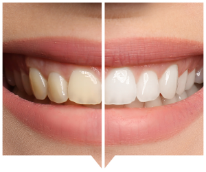 teeth whitening dental care smile before and after